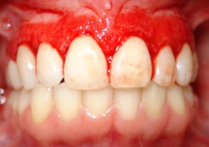 Gingivitis: causes and risk factors, symptoms, diagnosis, treatment and natural remedies