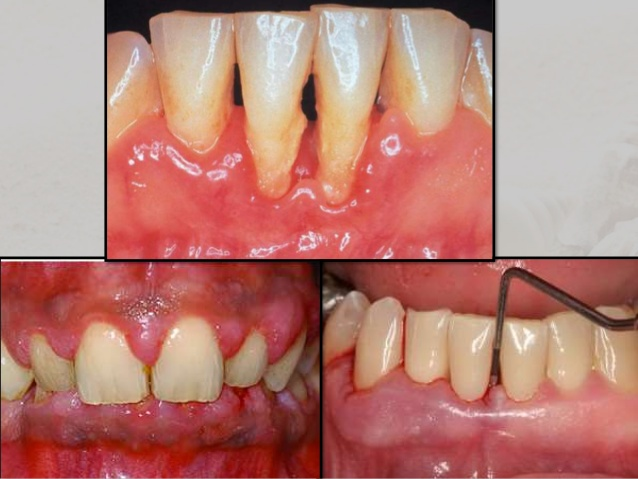 Image result for periodontal pocket formation