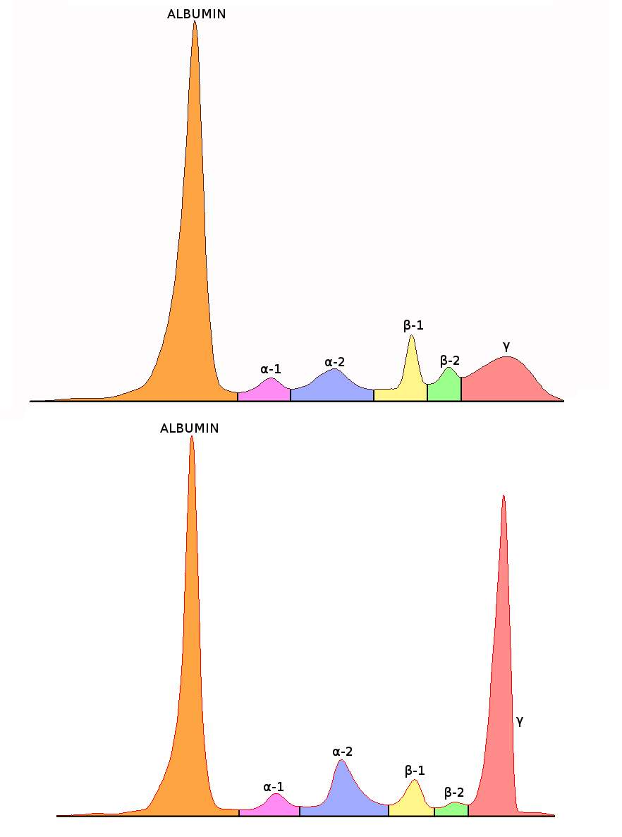 Image result for serum protein electrophoresis