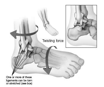 http://www.aofas.org/footcaremd/how-to/PublishingImages/anklesprain.gif