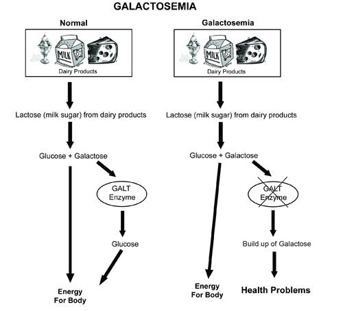 Galactosemia_small.jpg