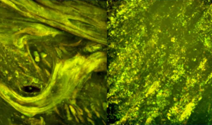 pulmozyme1.jpg