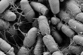 Leslie Gunther-Cummins, AIF. Unidentified bacteria collected from a gym floor. (Image taken using the Zeiss Supra 40 FESEM)