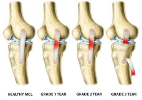 ACL-Tear-Grades.jpg