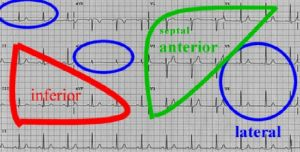 groups of ECG leads