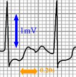ECG voltage and timing