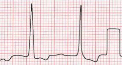 ECG calibration spike on right