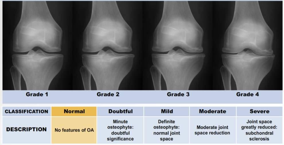 osteoarthritis knee kellgren lawrence