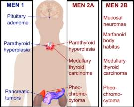 Image result for multiple endocrine neoplasia