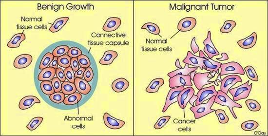 Image result for malignant tumor