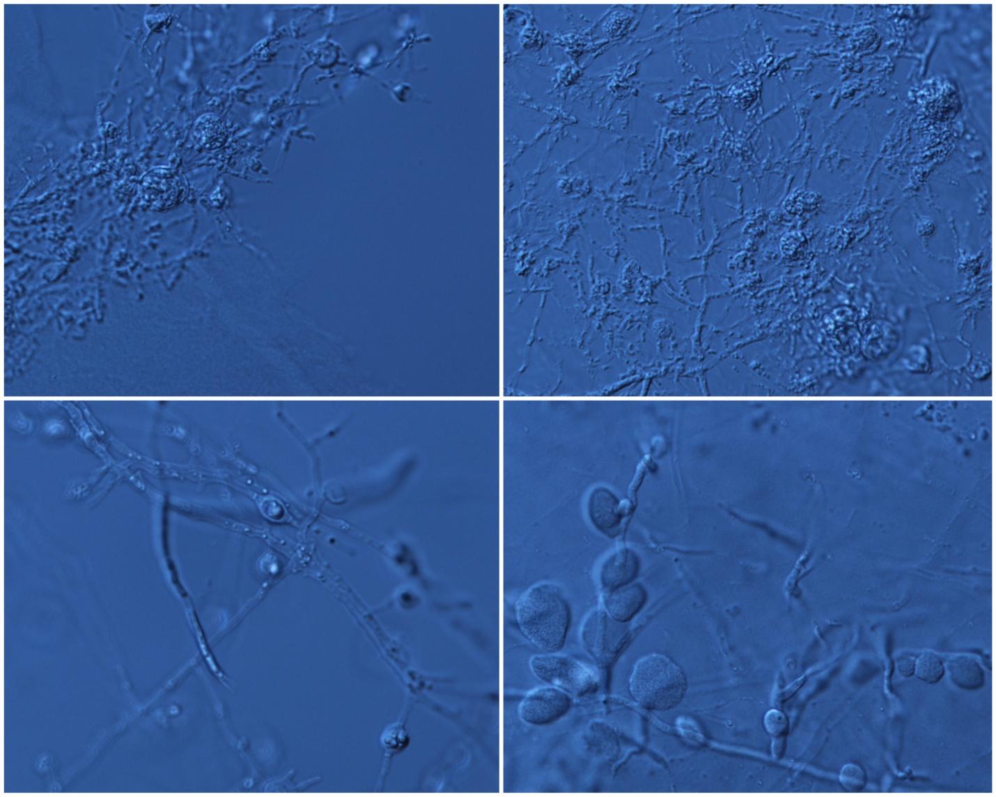Zygospore Formation.jpg