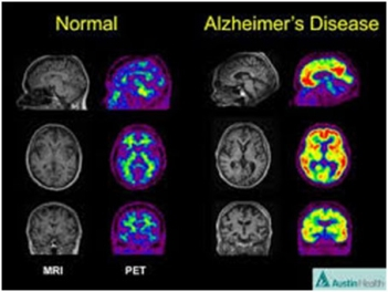Image result for beta amyloid pet scan