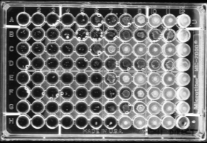 Image result for microdilution susceptibility test