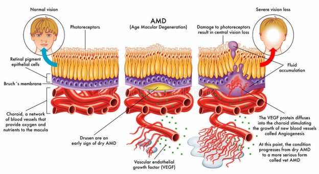Image result for age-related macular degeneration